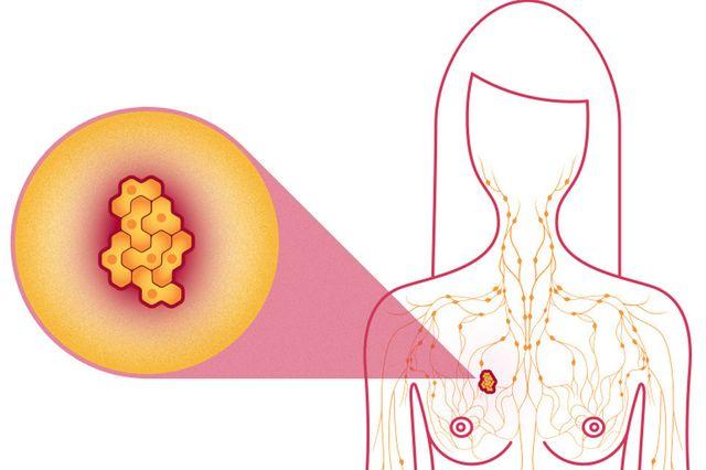 tumorile mamare tratament