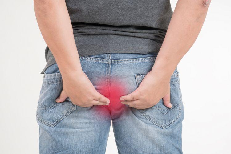 tratament hemoroizi cluj