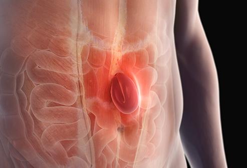 tratament hernie disc cluj