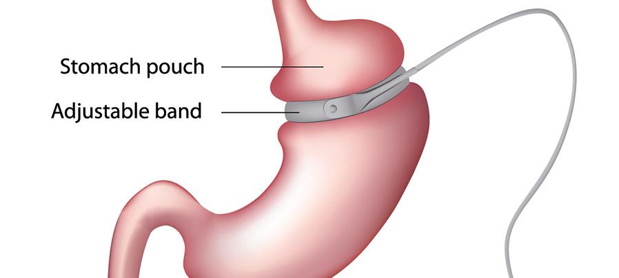 inel gastric cluj