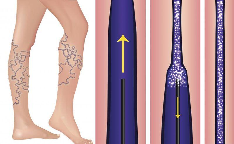 tratament varice cluj scleroterapia cu spuma