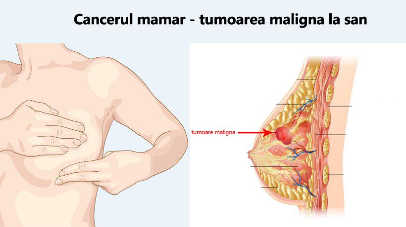 cancerul de san tumoare maligna